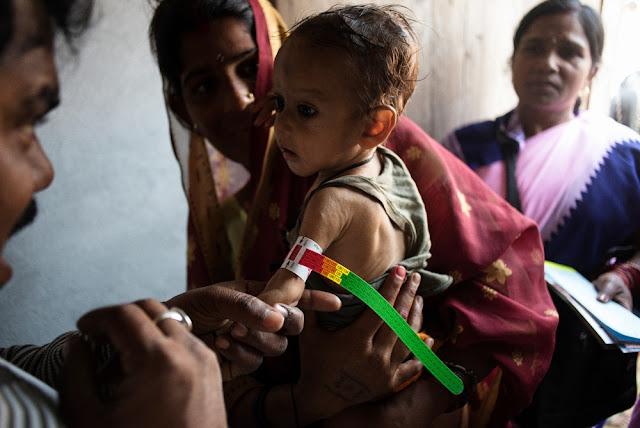 भारत के बच्चों की 69 प्रतिशत मौतें कुपोषण से