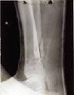 X-ray of Josef Jakob's broken leg - side view  (screen capture of National Archives)