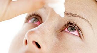 Faire une lotion apaisante pour les yeux irrités