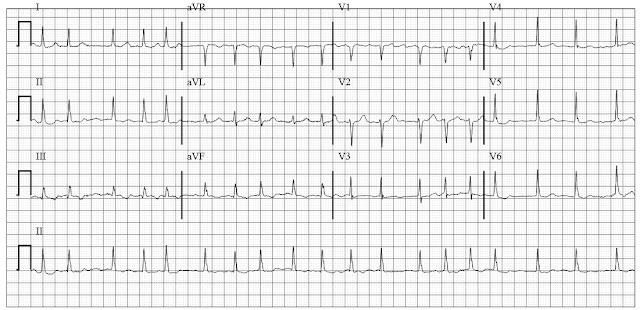 fast atrial fibrillation