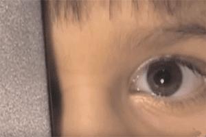 Niño con ambliopía u ojo vago