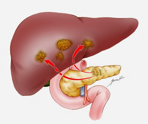 or pancreatic carcinoma is a rare form of cancer Prognosis And Treatment For Pancreatic Cancer