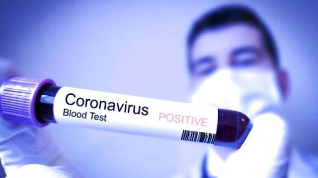 Pemerintah Didesak Antisipasi Penyebaran Virus Corona