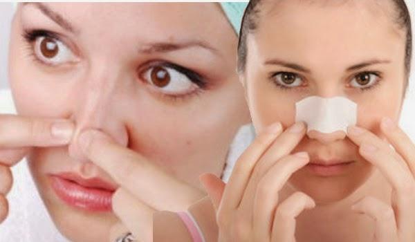 Cara Menghilangkan Komedo di wajah secara alami dan permanen hingga tuntas