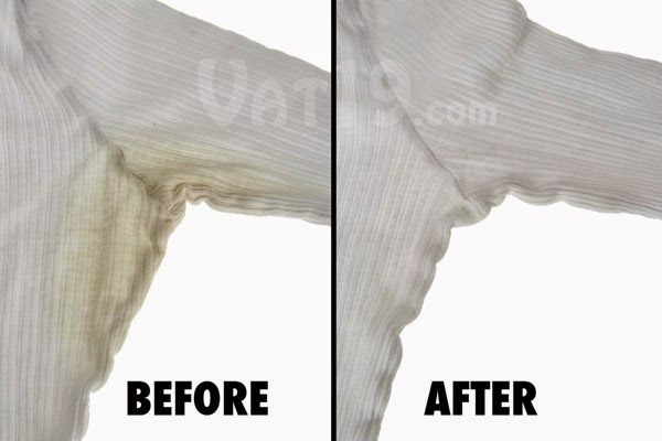 Remove All Stains How To Yellow From
