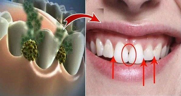 INILAH Cara Ampuh Hilangkan Bau Mulut dan Semua Bakteri dalam 5 Menit