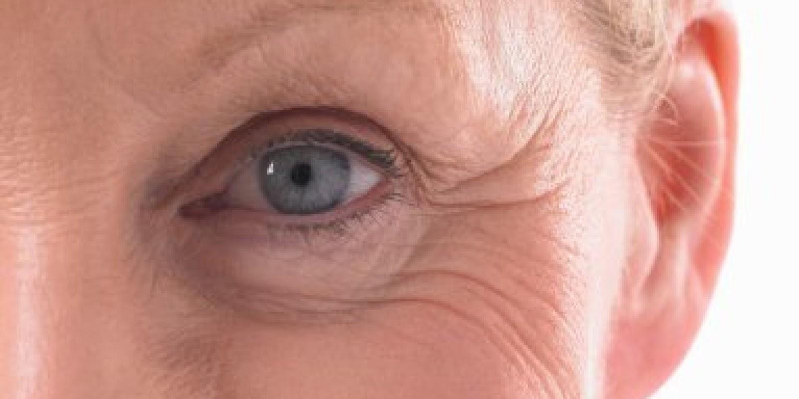 Wrinkles. Causes, symptoms, treatment Wrinkles |Wrinkly Skin