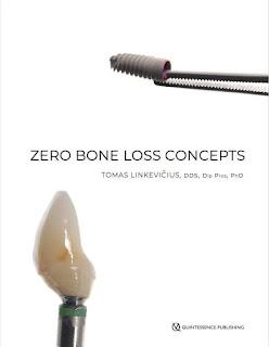Zero Bone Concepts