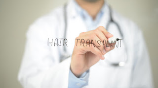Hair Transplants And The Way That You Feel