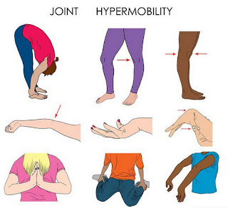 Ehlers Danlos syndrome pictures Joint hypermobility, one of the cardinal signs of EDS. picture
