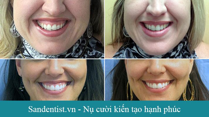 Điều trị cười hở lợi ko phải là bệnh đấy chỉ là một khiếm khuyết thẩm mỹ