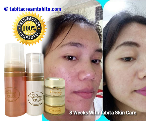 Harga Tabita Skin Care Asli
