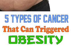 5 types of cancer that Can Triggered Obesity