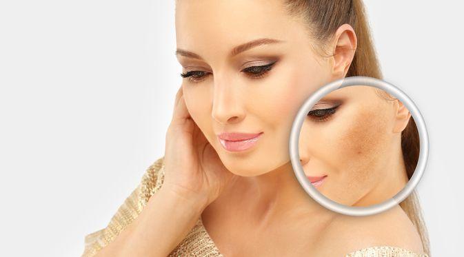 5 Produk Skincare Untuk Flek Hitam Ini Masih Banyak Diminati