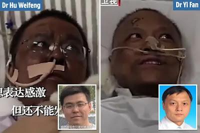 Permalink to Fakta Terbaru Kondisi Pasien Corona di China, Kulitnya Terbakar dan Jadi Sangat Hitam!