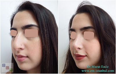 Nose Job in İstanbul, Turkey - Rhinoplasty Female Women