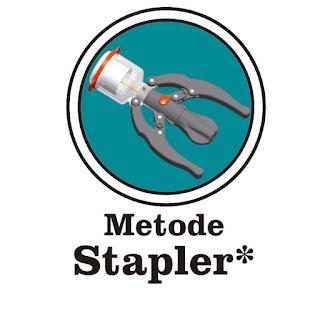 Paket Khitan Metode Stapler Anak (5-13th)