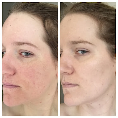 benzoyl peroxide for acne before and after photo 4