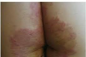 Cara mengatasi kulit tumbuh bintik merah gatal di bokong