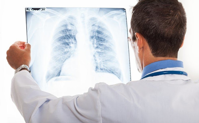 8 Gejala Kanker Paru-Paru, Yang Sering Ngerokok Mulai sekarang jangan lagi Merokok