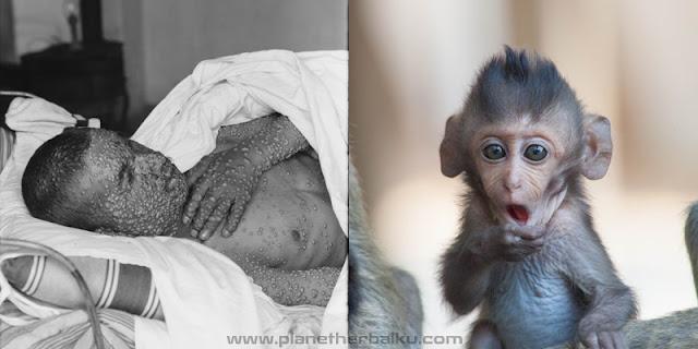 Obat Cacar Monyet atau Monkeypox