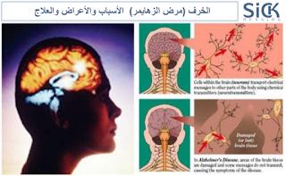 الخرف (مرض الزهايمر)  الأسباب والأعراض والعلاج