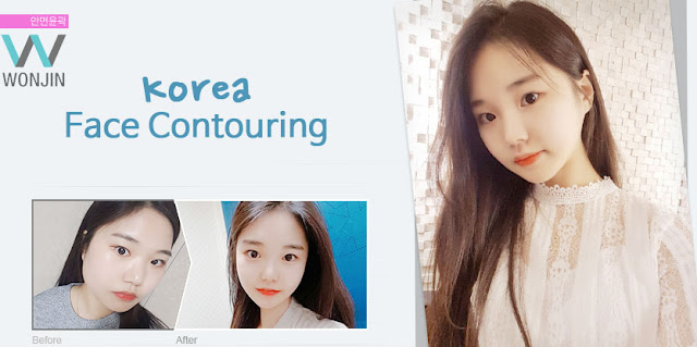 What Will Happened After Korea Face Contouring?