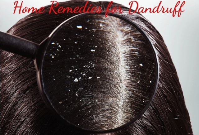Home Remedies for Dandruff In Hindi