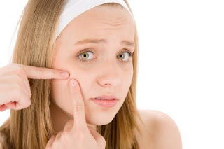 How to Cure Acne and Pimples on Your Face