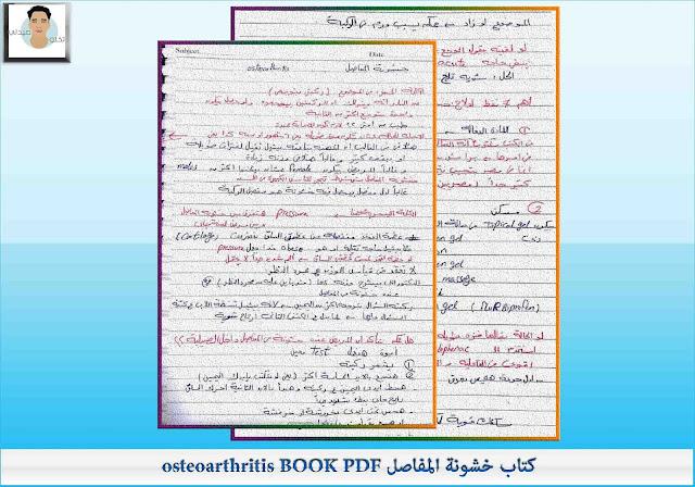 كتاب خشونة المفاصل osteoarthritis BOOK PDF