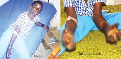 Herbalist And Stepmother Connive To Burn Boy's Hand, Nasarawa