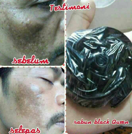 testimoni queen black soap