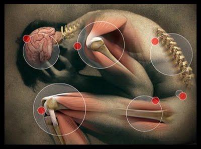vitaminas para alívio da dor nos nervos