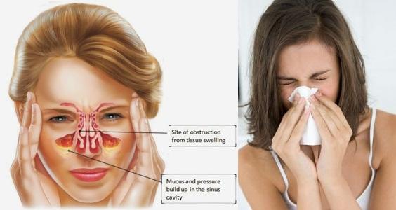 Obat Flu Menahun Alami, Ampuh Menyembuhkan Flu Menahun Secara Alami : QnC Jelly Gamat Solusinya