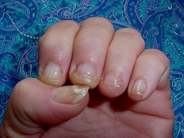 Nail Infection From Fake Nails