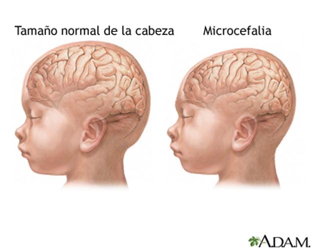 microcefala_virus_zika