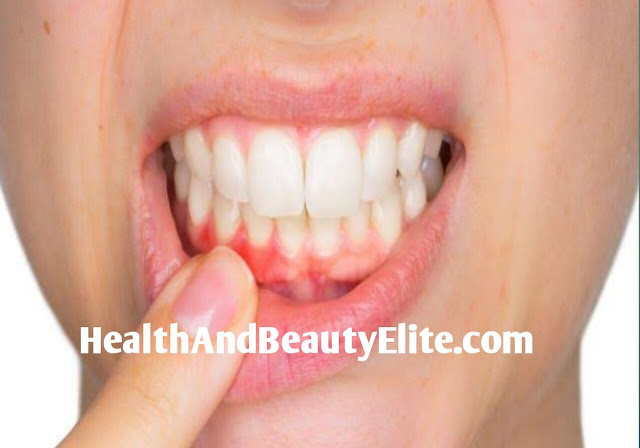 A very simple home remedy to stop bleeding gums. Health And Beauty Elite.