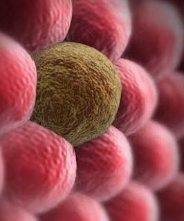ما هو مرض السرطان ؟ بالتفصيل