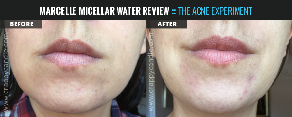 Marcelle 3-in-1 Micellar Water Before & After - The Acne Experiment