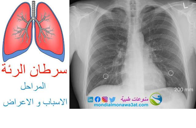 اعراض سرطان الرئة بالتفصيل، اعراض سرطان الرئة المتقدمة، اعراض سرطان الرئة المتاخر، كم يعيش مريض سرطان الرئة،مراحل سرطان الخلايا الغير الصغيرة، مراحل سرطان الخلايا الصغيرة، تشخيص سرطان الرئة