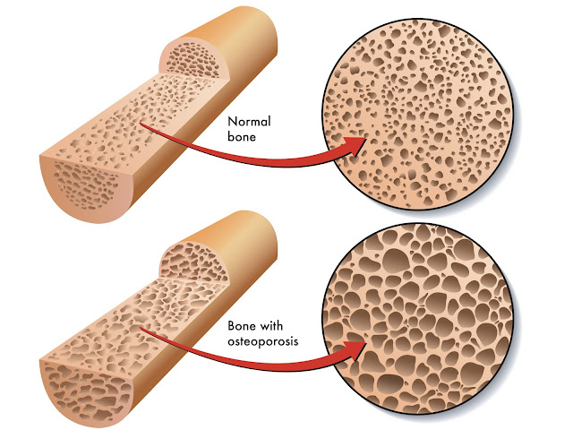 Cara Menghambat Pengeroposan Tulang Osteoporosis