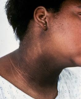 sindrom de rezistenta la insulina