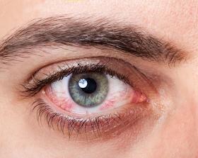 طرق الوقاية من حساسية العين