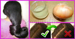 onion-hair-treatment