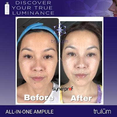 Jual Obat Penghilang Flek Hitam Trulum Skincare Kaliwiro Wonosobo