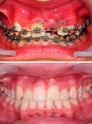 ретенированный зуб кривые зубы неправильный прикус