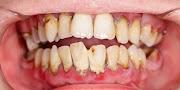 6 Cara Menghilangkan Karang Pada Gigi