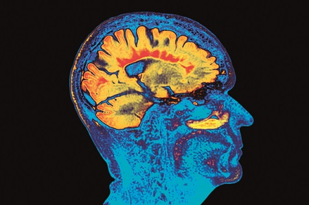 Células inmunes intestinales bloquean el avance de la esclerosis múltiple