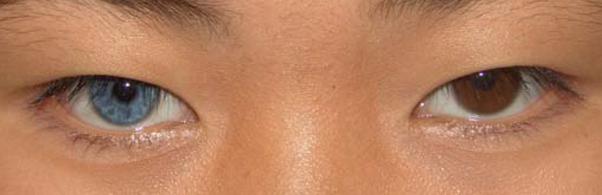hai tròng mắt có 2 màu khác nhau