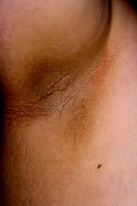 picture of Acanthosis nigricans in underarm with velvet skin texture